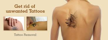 laser tattoo removal dezire clinic