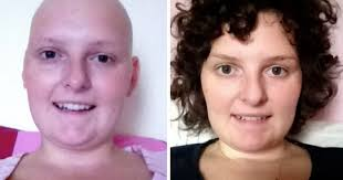 how to grow out hair after cancer 10 tips to stimulate hair growth after chemo fairy hairs of hair