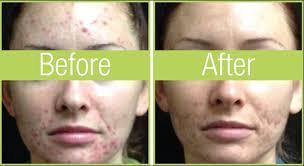 led light therapy for skin led phototherapy skin treatments near buffalo ny face fitness ltd