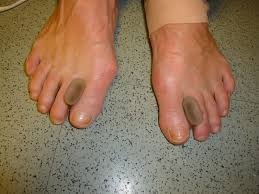 thoughtful how to not bite your nails remedies www drblakeshealingsole com foot and ankle problems bunions