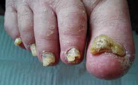 blog about laser treatment for toenail fungus infections san