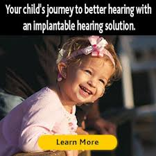 Meme Implants - nucleus implants steps to treatment cochlear