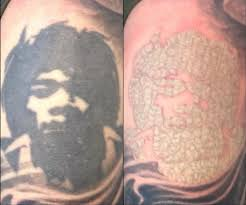 sunscreen and laser tattoo removal u2013 the relation between the two