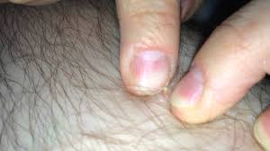 how to remove ingrown hair in thigh infected ingrown hair on leg youtube