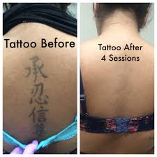 tattoo removal shoulder tattoo removal treatment laser