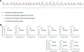 What Is The Square Root Of 1000 by Nasal Respiration Entrains Human Limbic Oscillations And Modulates