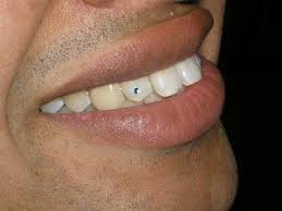 diamond stud on tooth tooth piercing also called dental piercing exles procedures
