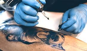 picosecond lasers usher paradigm shift in tattoo removal