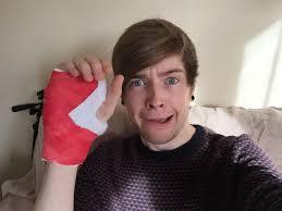 Dantdm Maps Broken Hand News Youtube