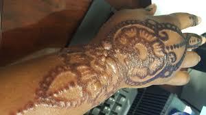 henna tattoo under breast boy suffers allergic reaction after black henna tattoo done at