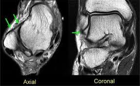 Ankle Ligament Tear Mri Ankle Ligaments Foot U0026 Ankle Orthobullets Com