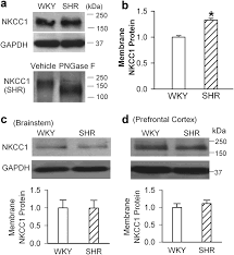 nkcc1 upregulation disrupts chloride homeostasis in the