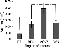 functional correlates of the anterolateral processing hierarchy in