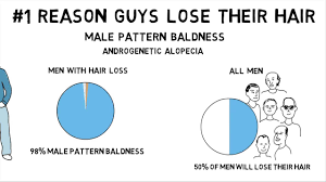 why do guys lose their hair part 2 male pattern baldness u2013 john u0027s