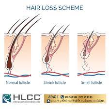 hair loss control clinic home facebook