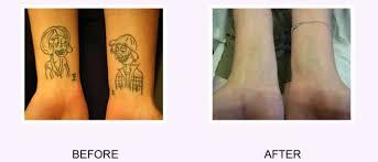 i want my tattoo removed i regret my tattoo