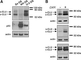 silencing expression of the clusterin apolipoprotein j gene in