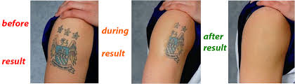 male tattoo removal in delhi best male laser tattoo removal in