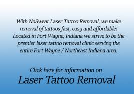 nosweat fort wayne tattoo removal and sweat elimination