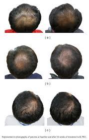 7 best non surgical hair restoration methods that work