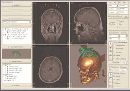 3d Medical Software Case Study Medical Customized Surgical Tools Produced By Eos