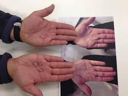 knoten handinnenfläche strahlentherapie der dupuytren krankheit