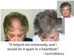 rogaine for women success stories hair loss is horrible for most women