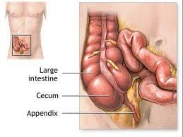 what side is your appendix on symptoms conditions and