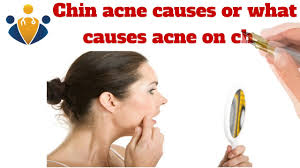 Face Mapping Acne Acne Under Chin Chin Acne Causes Painful Hormonal Around Under