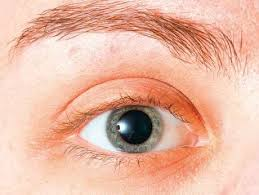 Diabetic Blindness Protein With Key Role In Diabetic Blindness Found Gulfnews Com