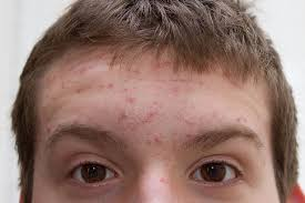 What Causes Blind Pimples In Adults If You U0027ve Got Acne In Your 40s We Could Have The Answer To Your