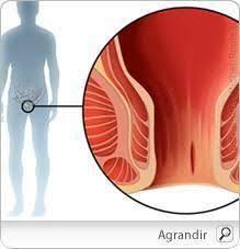 bain de si e pour fissure anale fissure anale comment la traiter