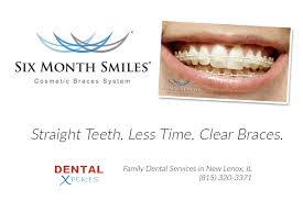 New Garden Family Dentistry Trusted Family Dental Care Dental Xperts In New Lenox