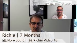hair transplant before and after 7 months jacksonville florida