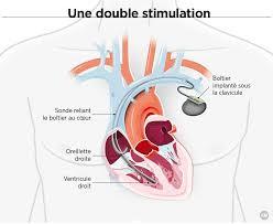 des pacemakers toujours plus perfectionnés sciencesetavenir fr