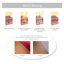 puvic hair pics bikini waxing vs bikini laser hair removal laser by sia