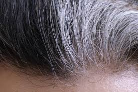 causes of baldness gray hair identified