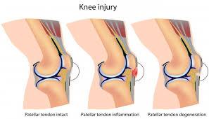 Lateral Patellar Ligament Patella Tendon Injury The Stone Clinic