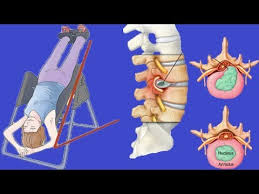 can an inversion table be harmful can inversion therapy help with back pain youtube