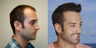 hair plugs for men celebrity hair transplant dr brett bolton s best hair
