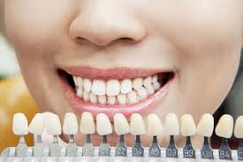 choosing a lshade selecting the right shade of dental veneers is essential