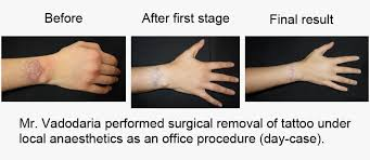 tattoo removal london vadodaria cosmetic plastic surgery london harley street and