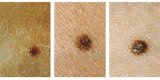 How To Check If You by How To Check A Mole On Your Skin For Cancer Business Insider