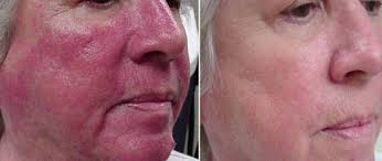 red light therapy skin benefits how to use red light therapy to heal rosacea redness pain naturally
