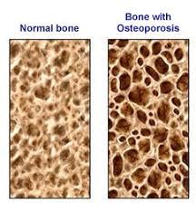 Normal Bone Anatomy And Physiology Anatomy Gross Anatomy Physiology Cells Cytology Cell Physiology