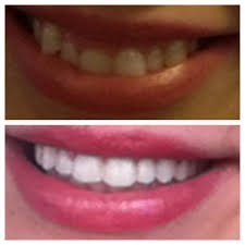 Groupon Teeth Whitening Chicago Manchester Dentistry Cosmetic Dentists Manchester Ct 935