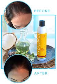hair burst complaints nourish beauté vitamins hair growth shoo review shoo truth