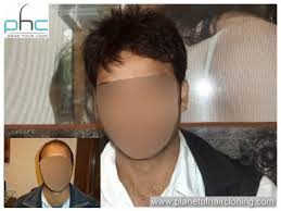 men hair weave pictures wigs in delhi hair wigs in delhi men s hair weaving in delhi india