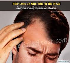 womans hair thinning on sides hair loss on one side of the head hair loss treatment