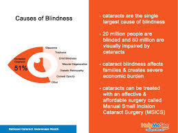 Can Cataracts Lead To Blindness 14 Best Cataract Blindness Images On Pinterest Blind
